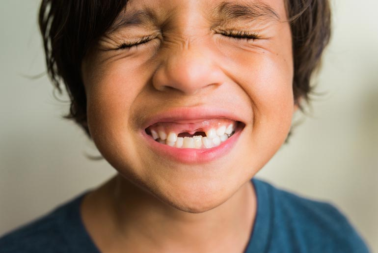 east bay emergency dental care for boy's knocked out teeth