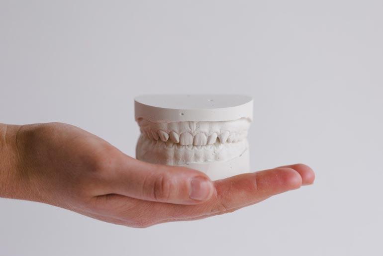 rockaway beach mouth model that needs tmj treatment